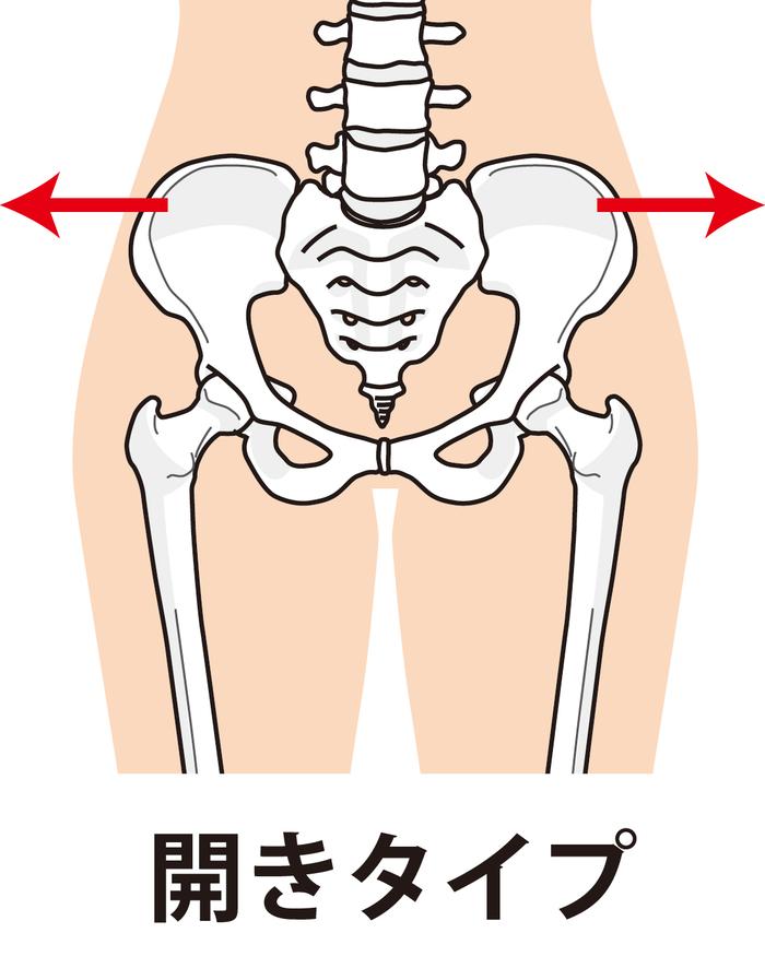 骨盤の開きタイプ