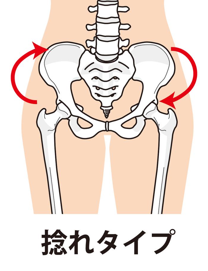 骨盤のねじれタイプ